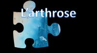arthrose.png